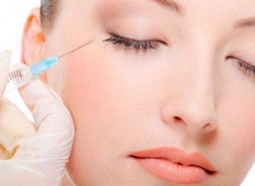 Implantes de relleno